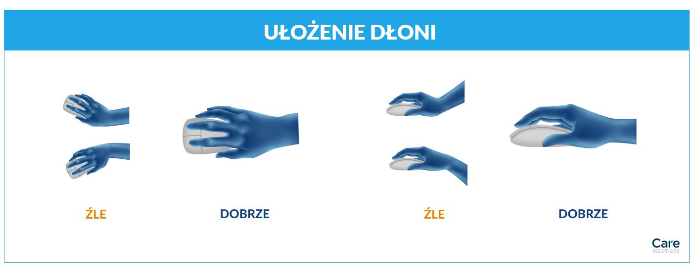 ulozenie-dloni