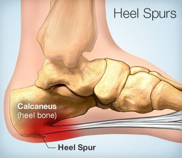 how-to-get-rid-of-heel-spurs-without-surgery
